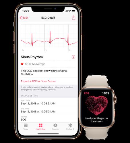 Apple Watch ECG/Apple