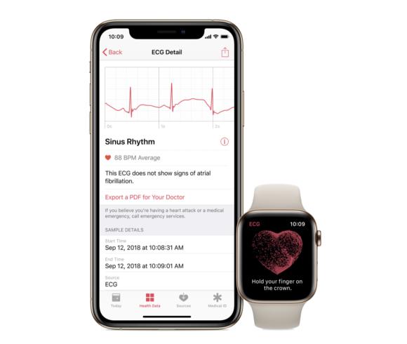 Apple Watch ECG/Apple USA