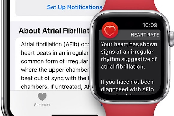 AFib message Apple Watch